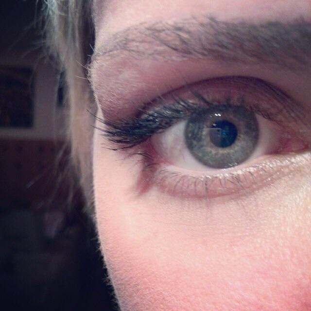 Petañas solo en el extremo del ojo