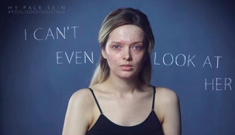 Vídeo viral You look disgusting